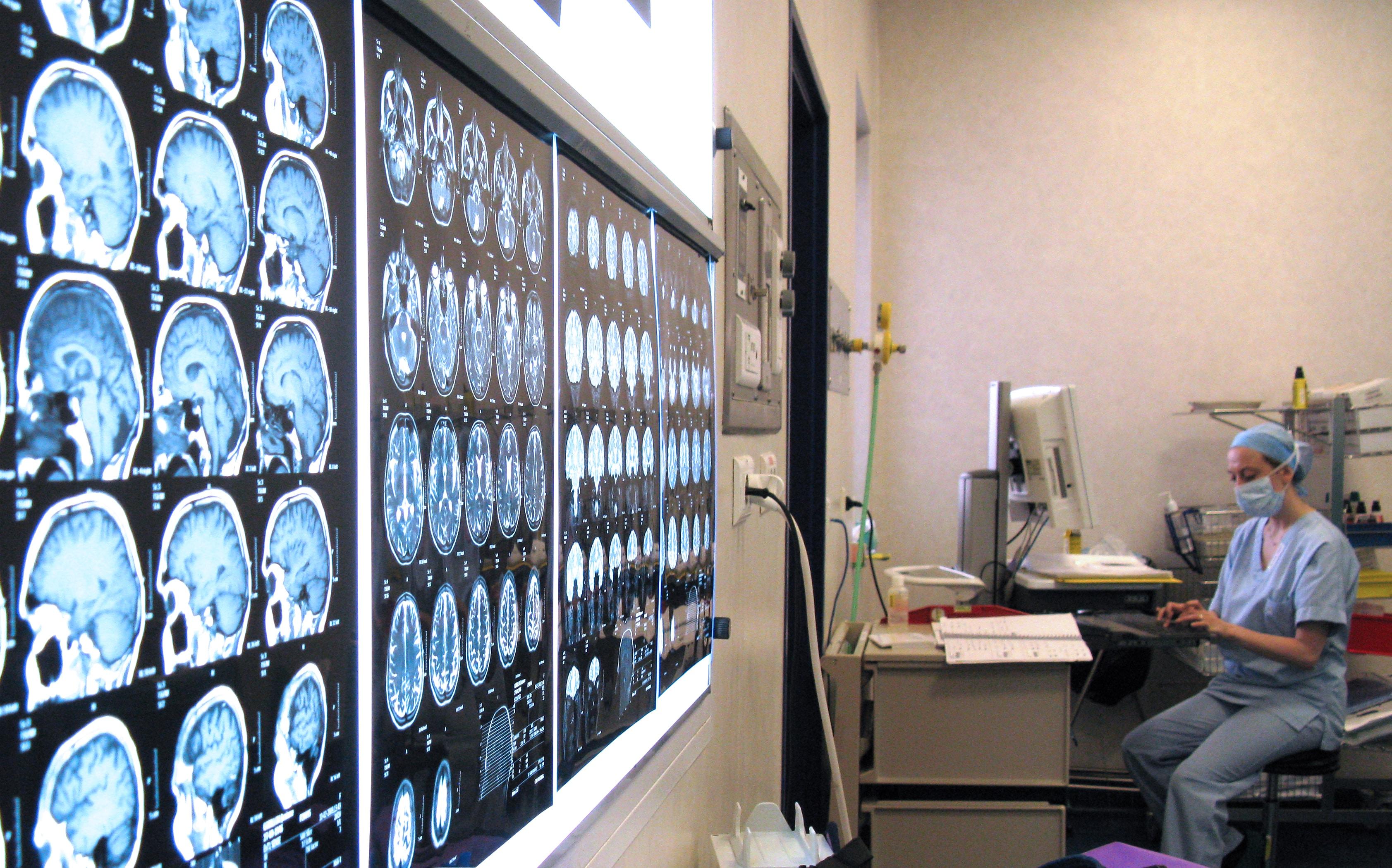 neurologue annonce 1